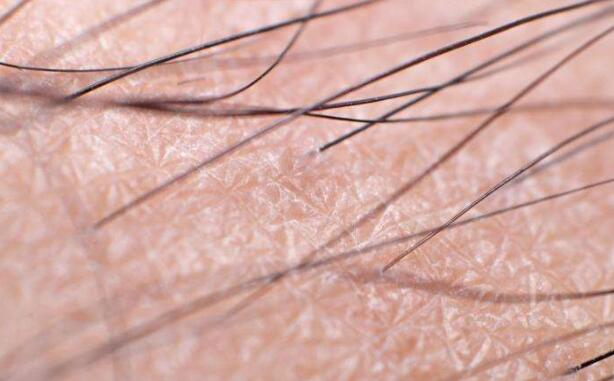 Why is hair growth different in different parts of the body?