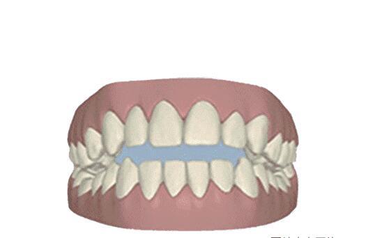 Are teeth also bones?
